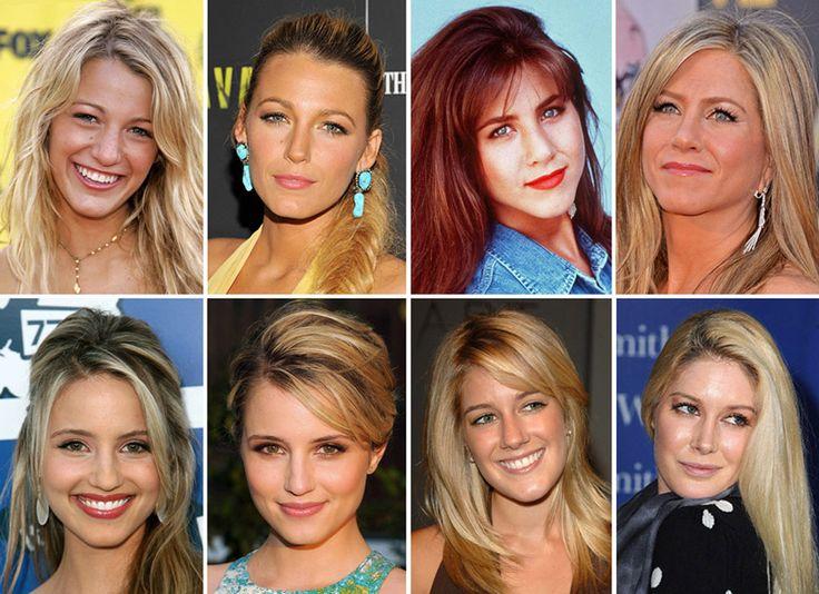 Grandes celebridades antes e depois das plásticas